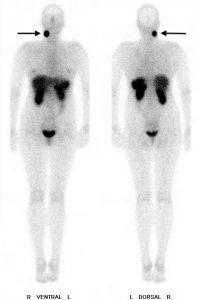 """Nachweis eines sogenannten """"Glomustumor"""" rechts am Hals von vorne (links) und hinten (rechts)"""