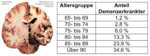 Die Abbildung zeigt links den Vergleich zwischen normaler Hirnanatomie und einer Demenz im fortgeschrittenen Stadium. Rechts: Tabelle der altersabhängigen Erkrankungshäufigkeit.