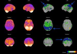 Oberflächendarstellung der Hirndurchblutung und sogenannte Z-Score-Darstellung bei einem Alzheimer Patient, Minderdurchblutungen mit Pfeil markiert (blaue Areale)