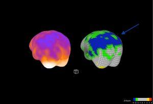 Oberflächendarstellung der Hirndurchblutung eines Patienten mit Verdacht auf eine Alzheimer Erkrankung