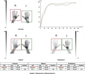Drei-Phasenskelettszintigraphie bei M. Sudeck (CRPS) der linken Hand