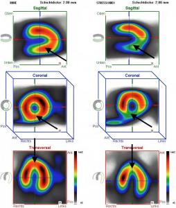 Myokardszintigraphie mit Durchblutungsstörungen, links Untersuchung in Ruhe, rechts unter Belastung. Die Pfeile markieren differente Bereiche
