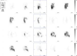 Lungenszintigraphie mit Schnittbildaufnahmen einer Lunge mit multilokulären Durchblutungsstörungen