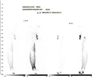Lymphszintigraphie der Beine (normaler Lymphabfluss rechts, Lymphgefäßerkrankung links)