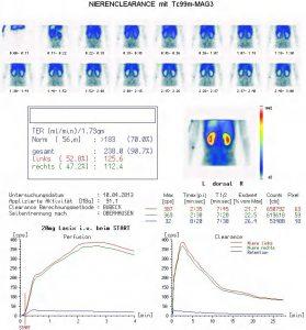 Nierenszintigraphie mit seitengetrennter Ausscheidungsmessung (Nierenclearence) (hier: Normalbefund)