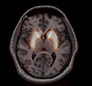 Normale Rezepterdichte im DaTSCAN, fusioniert mit einem MRT des Kopfes