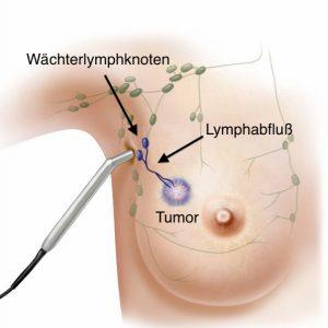 Auffinden der Wächterlymphknoten mit einer Handsonde intraoperativ durch die radioaktive Markierung