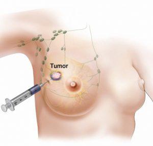 Wächterlymphknotensuche, Injektion des Radionuklids vor OP (meist 1 Tag vor OP)