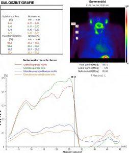 Speicheldrüsenszintigraphie