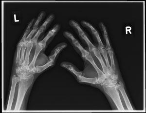 Schwere Polyarthritis der Hände mit ausgeprägter Gelenkdestruktion
