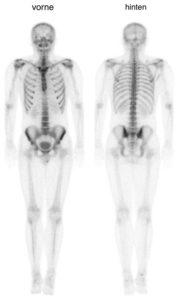 Ganzkörperszintigraphie von vorn und von hinten (Normalbefund)